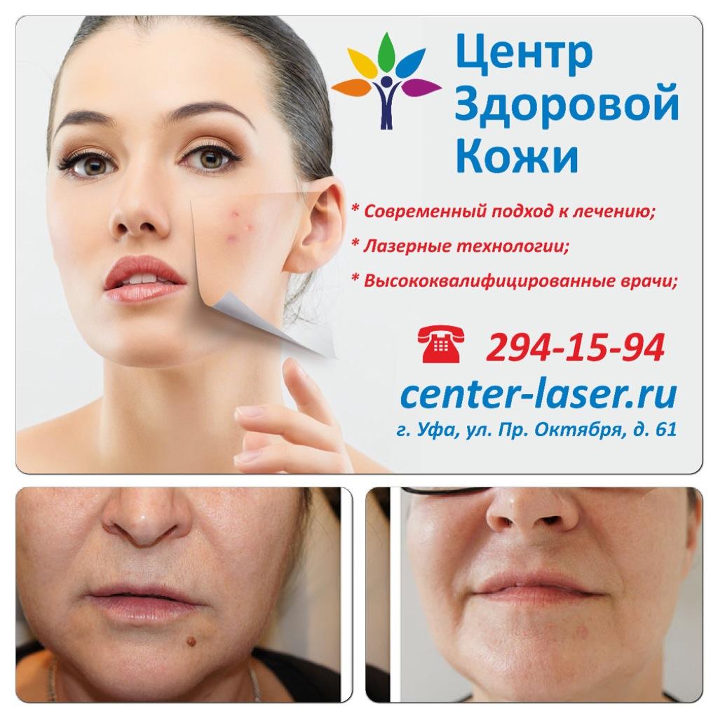 удаление папиллом на лице в уфе