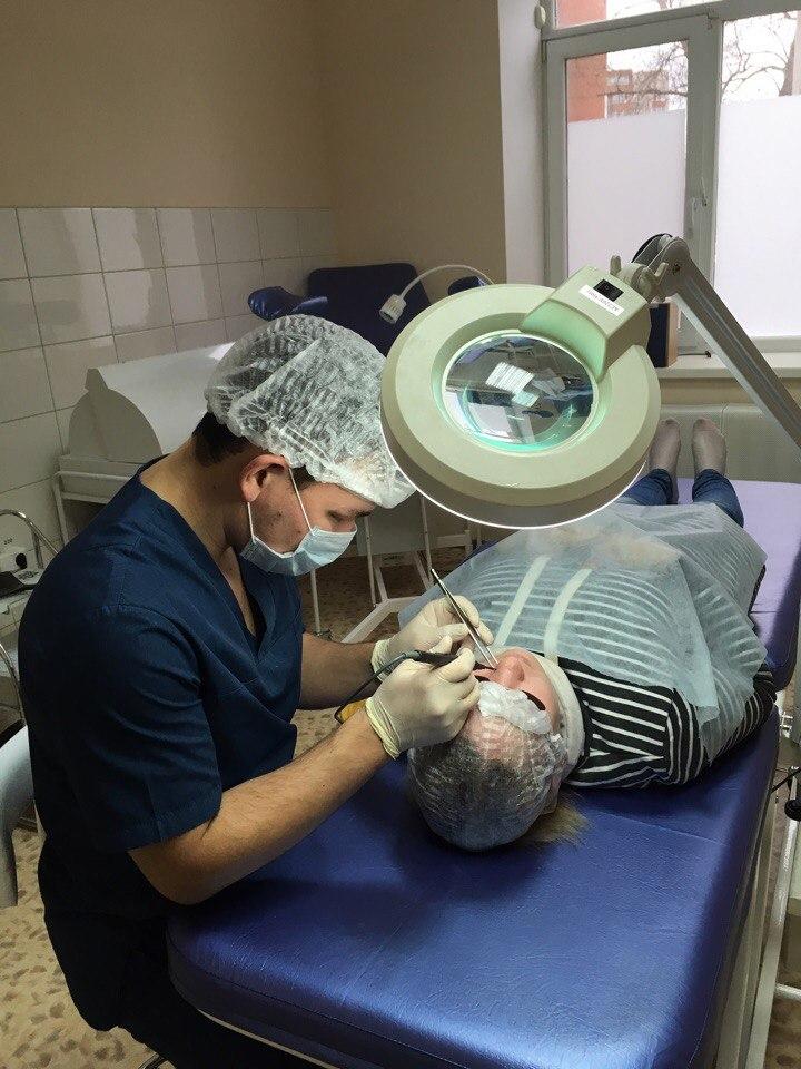 удаление бородавок в уфе