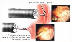 biopsiya_tolstoj_kishki_889
