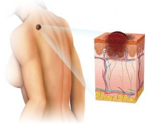 melanoma-diffusione