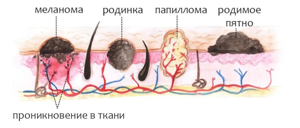 birthmark-e1430551952579
