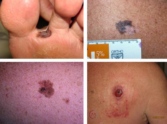 kak-vygljadit-melanoma1