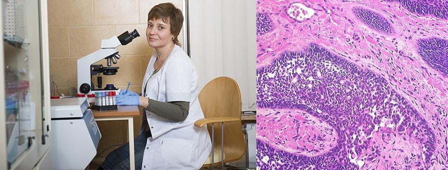 Гистологическое исследование в Центре Здоровой Кожи Уфа