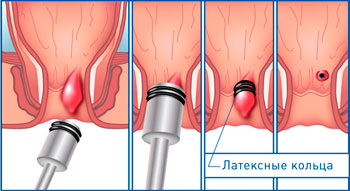 Сургитрон лечение геморроя уфа thumbnail