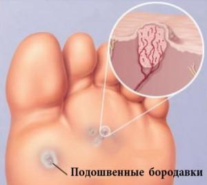 borodavki-4